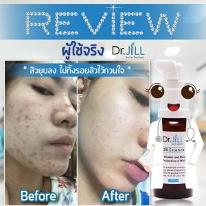 Dr.jill serum review